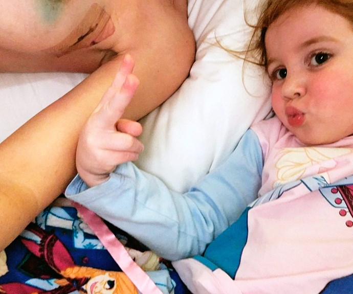 With her daughter, the brave mum shows her post-op scars.