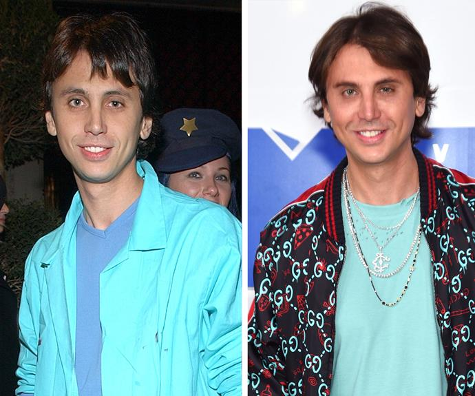 "A tale of two Jonathans: Kim Kardashian's bestie Jonathan Cheban (on the left in 2002), sparked fresh surgery speculation when he attended the [VMAs in New York on August 28 (R).](http://www.womansday.com.au/style-beauty/red-carpet/inside-the-2016-mtv-video-music-awards-16357|target=""_blank"") Fans were quick to point out the 42-year-old's puffy-looking skin and tender eyes."