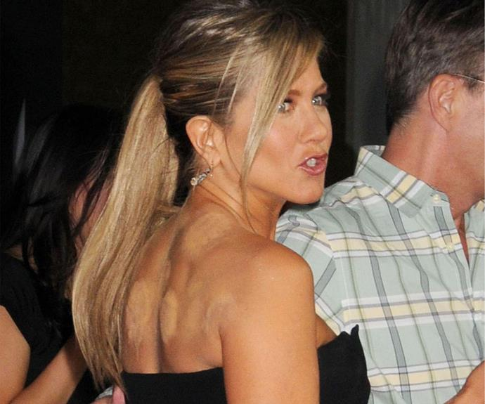 """While Jennifer Aniston nailed her face in the beauty department, her decision to conceal her [cupping](https://www.nowtolove.com.au/health/fitness/why-olympic-athletes-are-using-cupping-21878