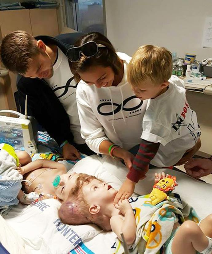 The 13-month-old twins were born conjoined at the head.