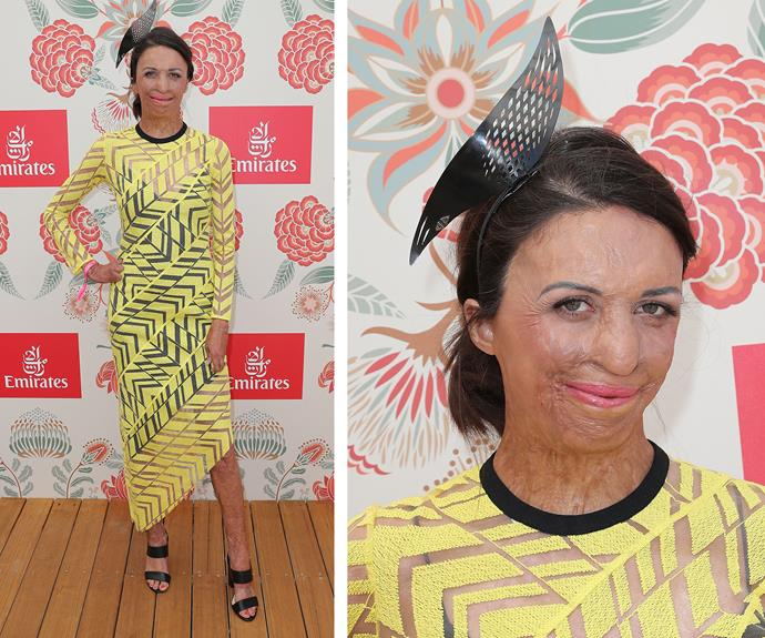 The ever-inspirational Turia Pitt lit up the room in an asymmetrical sunshine-yellow frock.