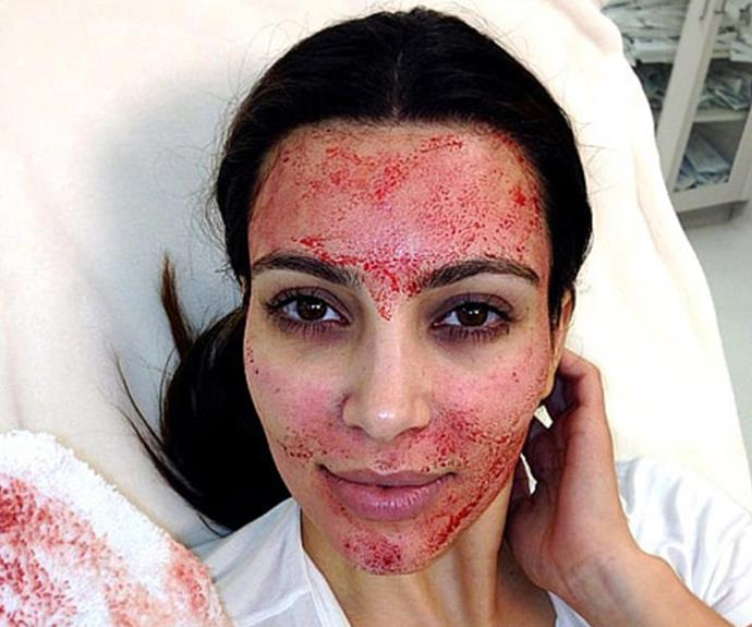 "As much as we wish this was a strawberry-jam facial, it's not. Kim Kardashian, who admits she loves ""trying anything that makes you look and feel youthful,"" shocked us all when she, too, underwent a ""vampire facial"". During the procedure, blood is drawn from the arm, platelets (cell fragments) are extracted and then injected into the face to prevent wrinkles. Her reaction is all of us..."