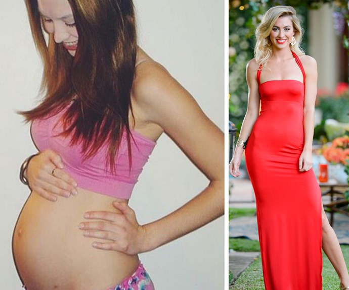 "Before she became a *Bachelor* favourite, 24-year-old Alex Nation was a mum-to-be. The reality star shared this snap from her pregnancy with son Elijah. ""Here I am, 18, a brace face, pregnant, nervous, a little unsure, excited, scared (petrified) but empowered. I just want to say to ALL the mums out there, we rock. We are tired (96.5% of the time) and very rarely do we get to sit on the toilet in peace, but we absolutely rock!!!"""