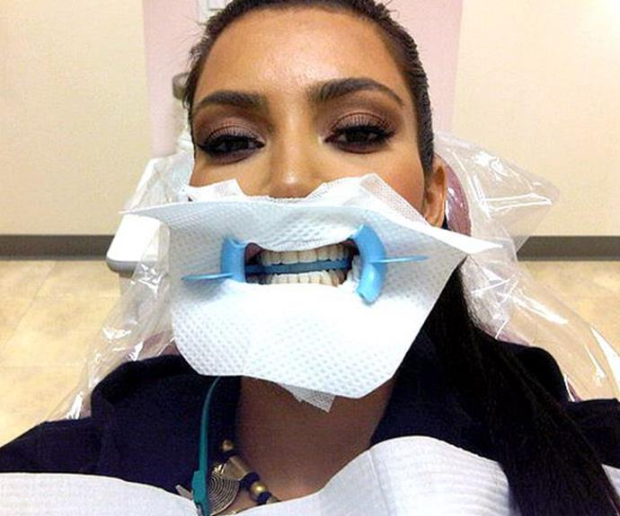 Kim Kardashian-West proves that even though she may not need a filling, it's always important to get a check-up with your dentist.