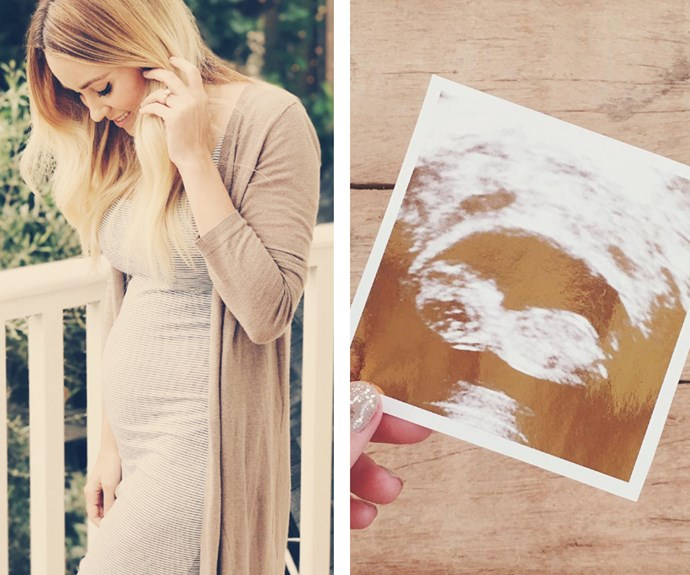 "Lauren Conrad has debuted the ""cutest baby bump ever"" in a too-pretty-for-words snap on her [website](https://laurenconrad.com/